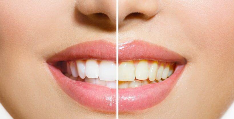 Consejos para deslumbrar con tu sonrisa