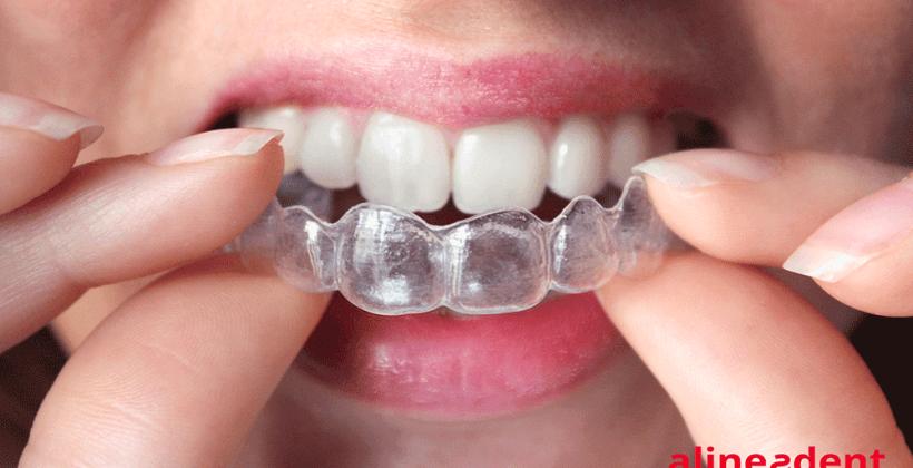 Alineación dental: métodos más eficaces